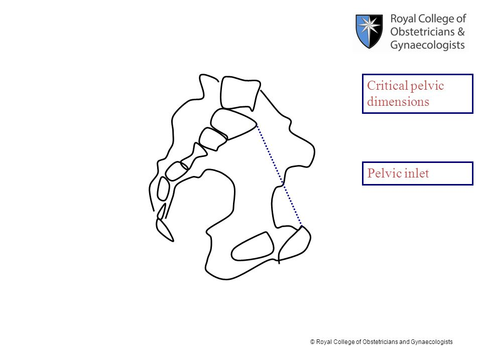 © Royal College of Obstetricians and Gynaecologists Pelvic inlet Critical pelvic dimensions