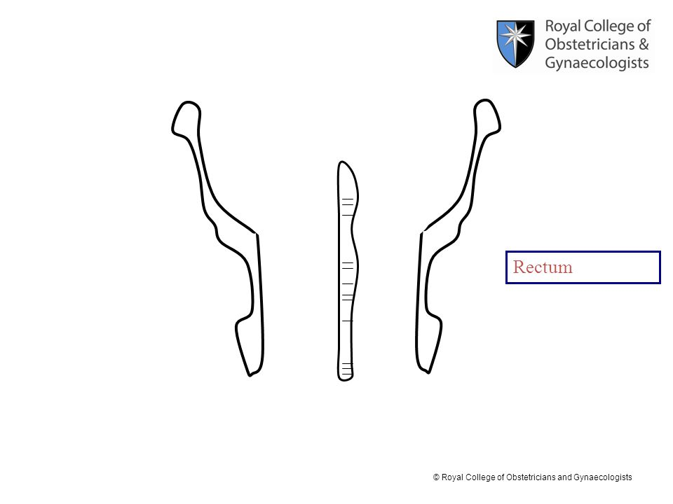 © Royal College of Obstetricians and Gynaecologists Rectum