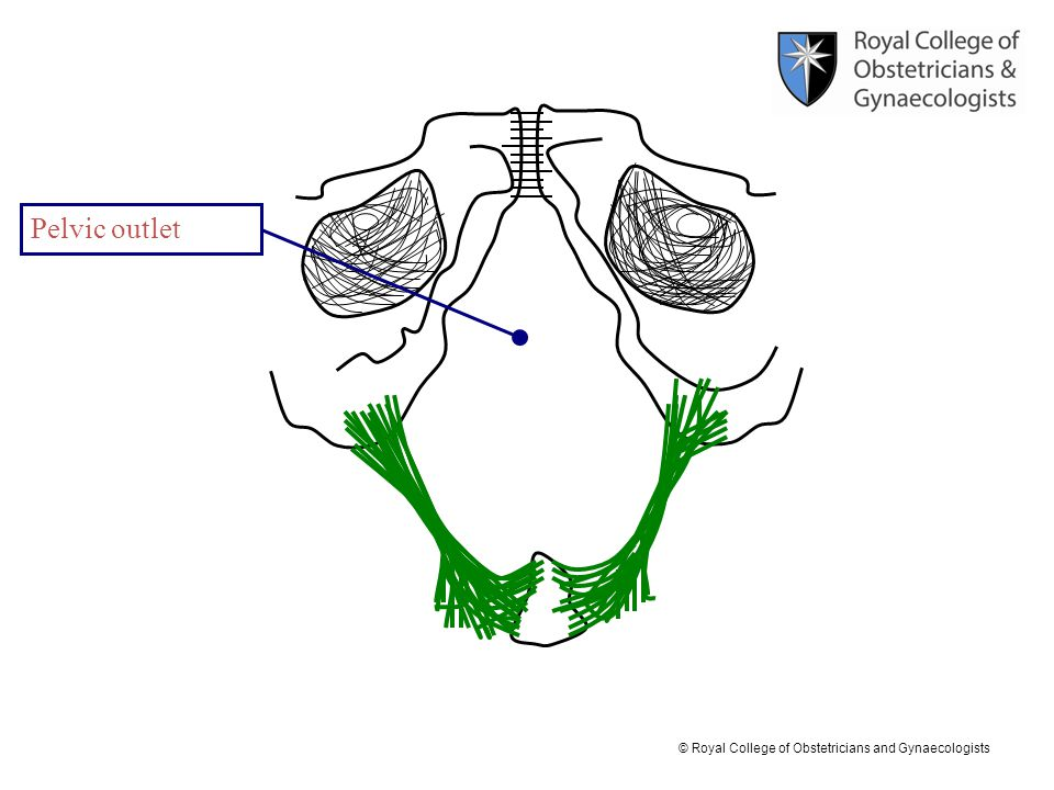© Royal College of Obstetricians and Gynaecologists Pelvic outlet