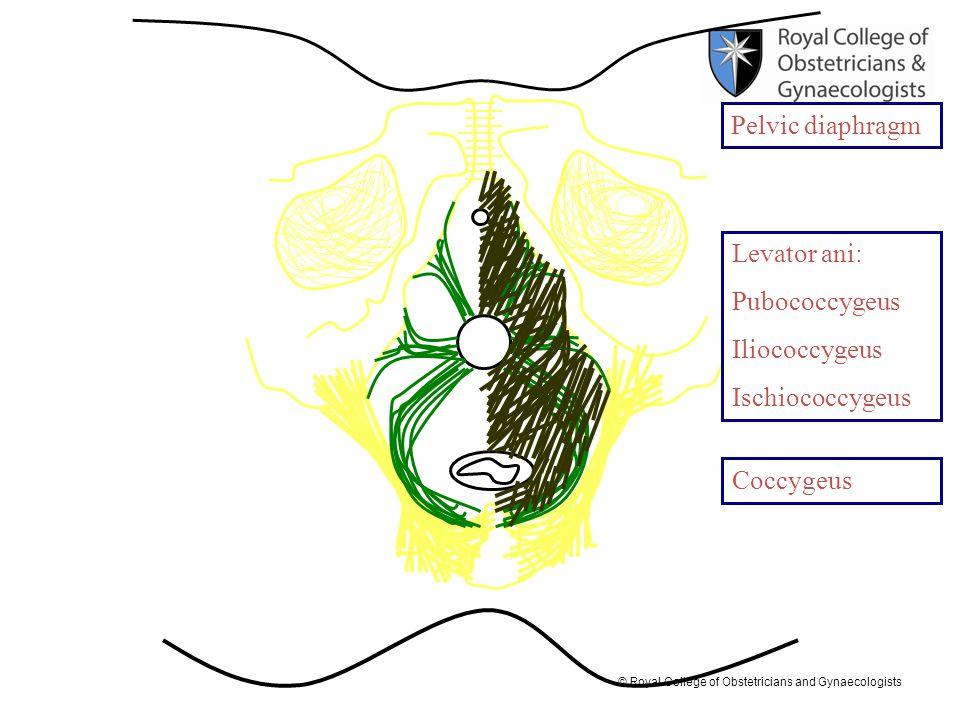 © Royal College of Obstetricians and Gynaecologists Levator ani: Pubococcygeus Iliococcygeus Ischiococcygeus Pelvic diaphragm Coccygeus