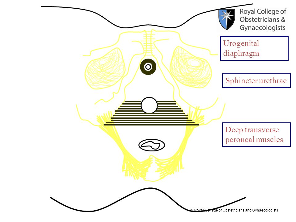 © Royal College of Obstetricians and Gynaecologists Sphincter urethrae Urogenital diaphragm Deep transverse peroneal muscles