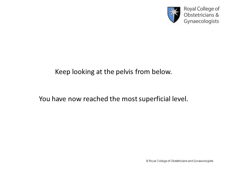 © Royal College of Obstetricians and Gynaecologists Keep looking at the pelvis from below. You have now reached the most superficial level.
