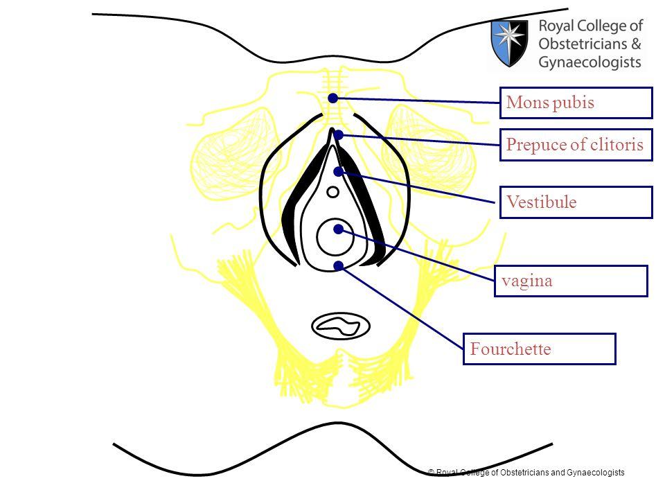 © Royal College of Obstetricians and Gynaecologists Prepuce of clitoris Mons pubis Vestibule vagina Fourchette