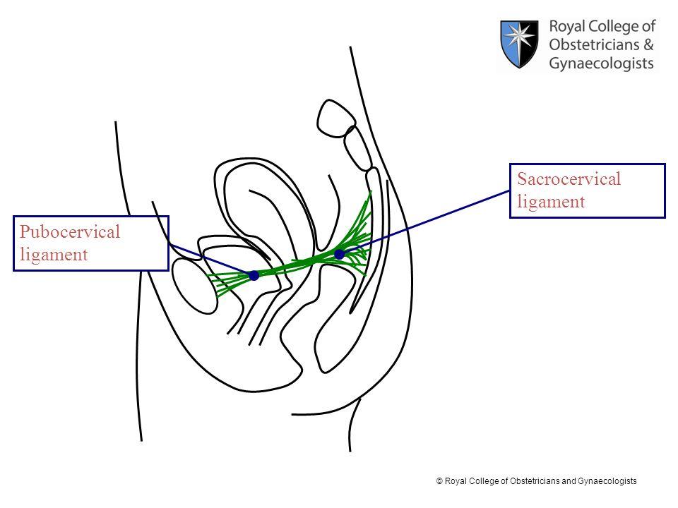 © Royal College of Obstetricians and Gynaecologists Pubocervical ligament Sacrocervical ligament