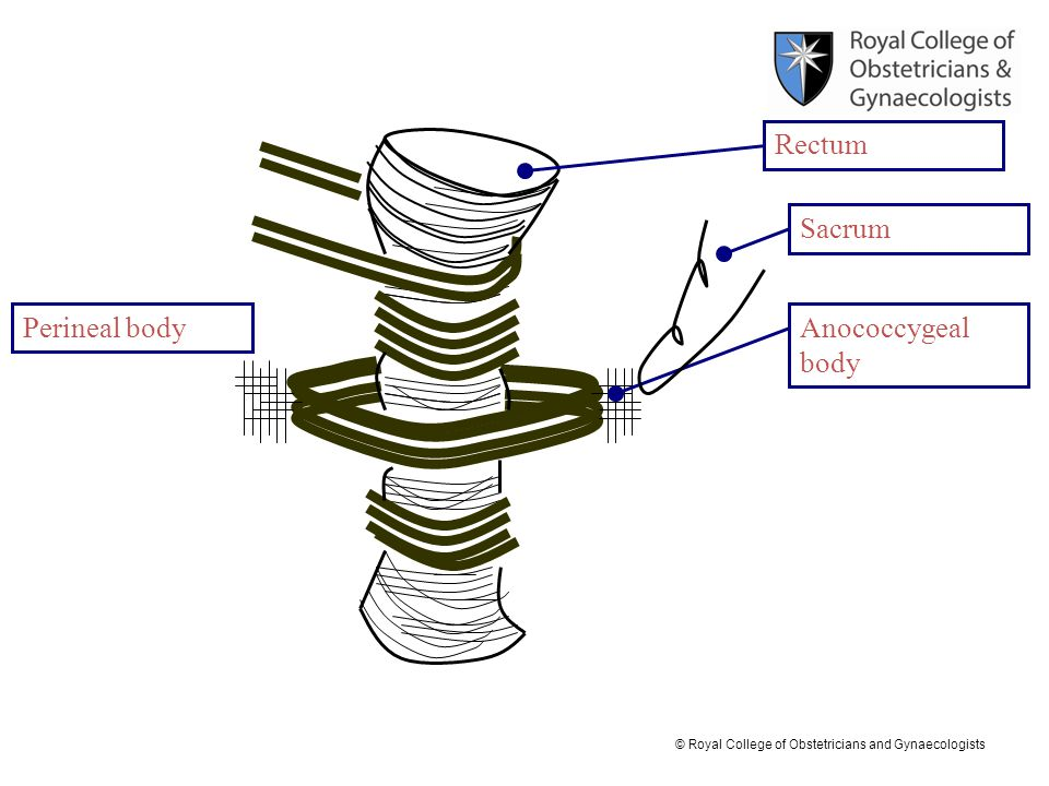© Royal College of Obstetricians and Gynaecologists Perineal body Sacrum Anococcygeal body Rectum