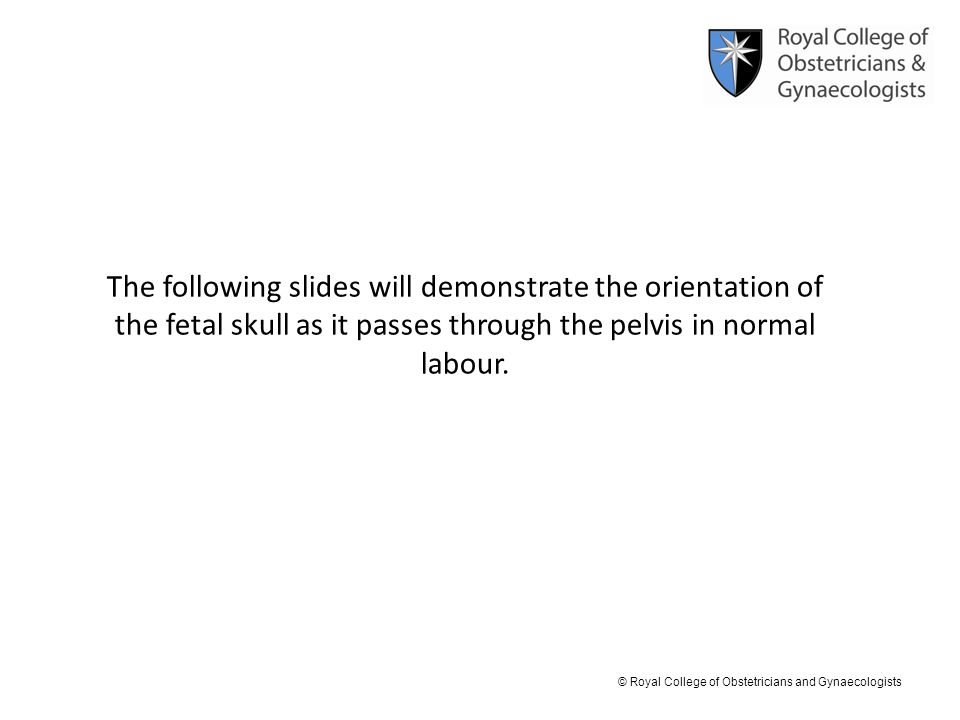© Royal College of Obstetricians and Gynaecologists The following slides will demonstrate the orientation of the fetal skull as it passes through the