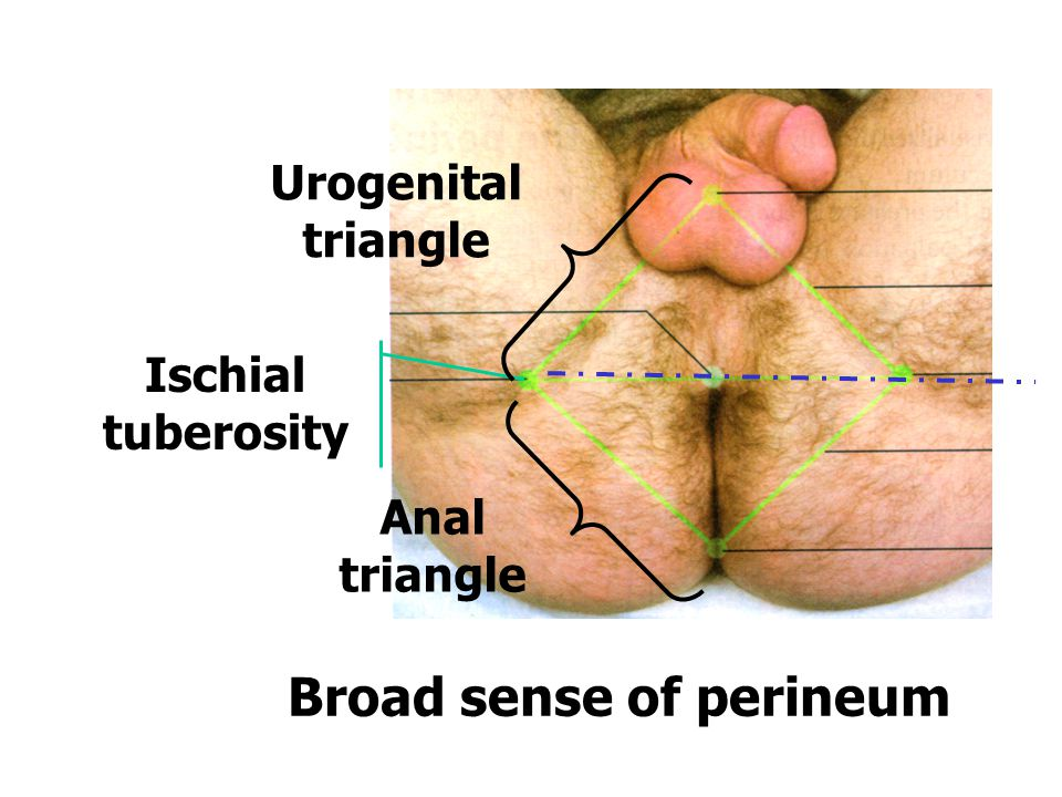 2.The parts of perineum (1)Urogenital triangle (2)Anal triangle