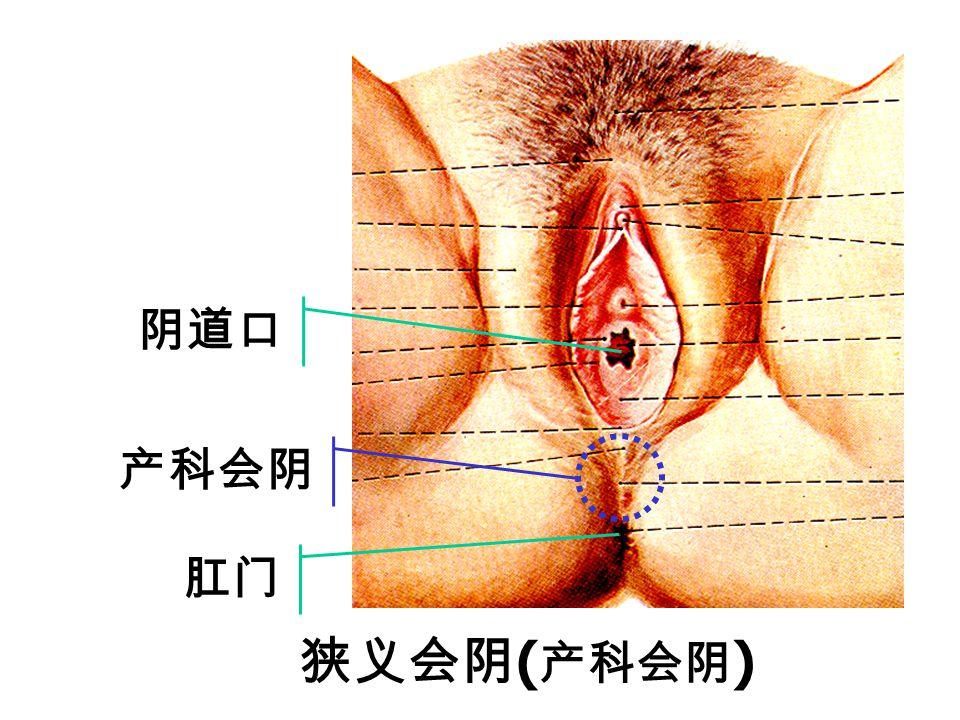 Vaginal vestibule Orifice of vagina anus Lesser lip of pudendum Orifice of urethra clitoris Narrow sense of perineum (obstetrical perineum) Narrow sen