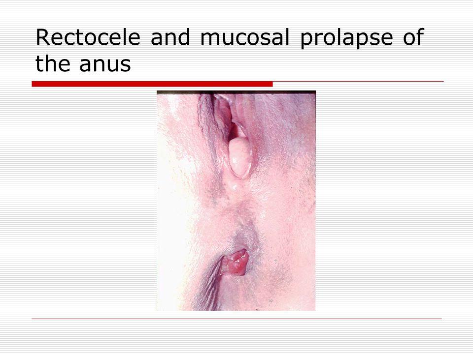 Rectocele and mucosal prolapse of the anus