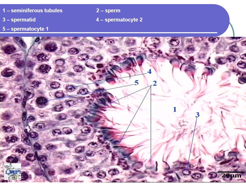 1 – seminiferous tubules 2 – sperm 3 – spermatid 4 – spermatocyte 2 5 – spermatocyte 1