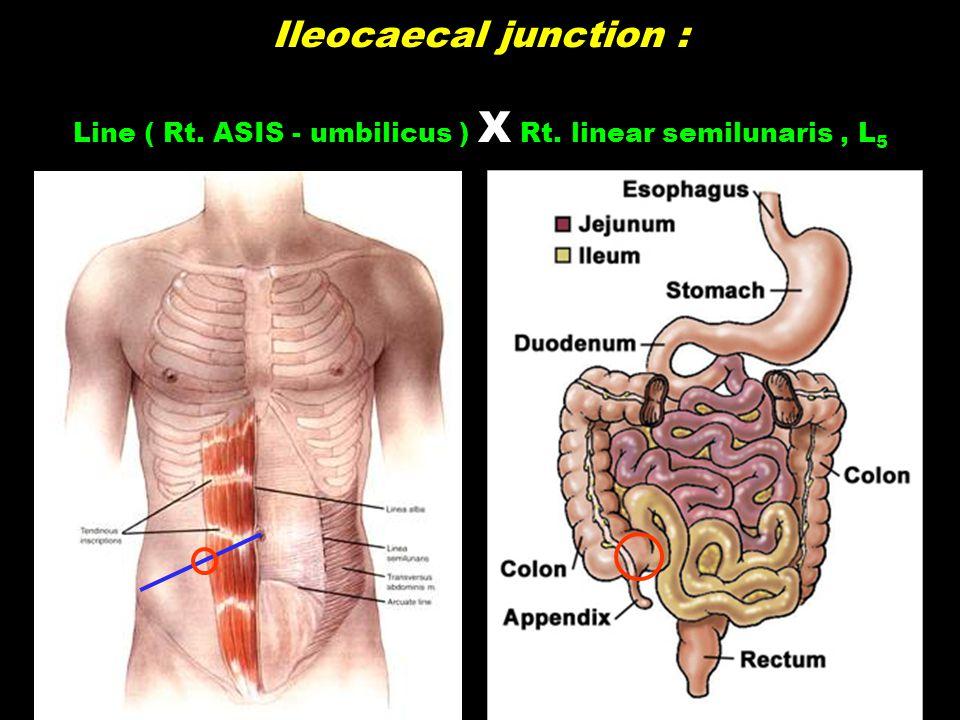 Ileocaecal junction : Line ( Rt. ASIS - umbilicus ) X Rt. linear semilunaris, L 5