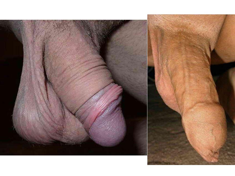 2. Compositions ( 组成 ) 1) cavernous body of penis ( 阴茎海绵体 ) crus of penis ( 阴茎脚 ) 2) cavernous body of urethra ( 尿道海绵体 ) glans f penis ( 阴茎头 ) bulb of