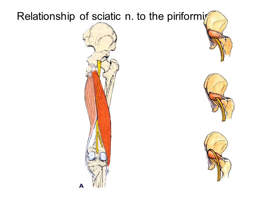 ★ Sciatic nerve Course: It arises from the sacral plexus and passes through infrapiriform foramen into the gluteal region, deep to gluteus maximus, passing midway between the greater trochanter of femur and ischial tuberosity to back of thigh, the nerve lies deep to the long head of biceps on the posterior surface of adductor magnus.
