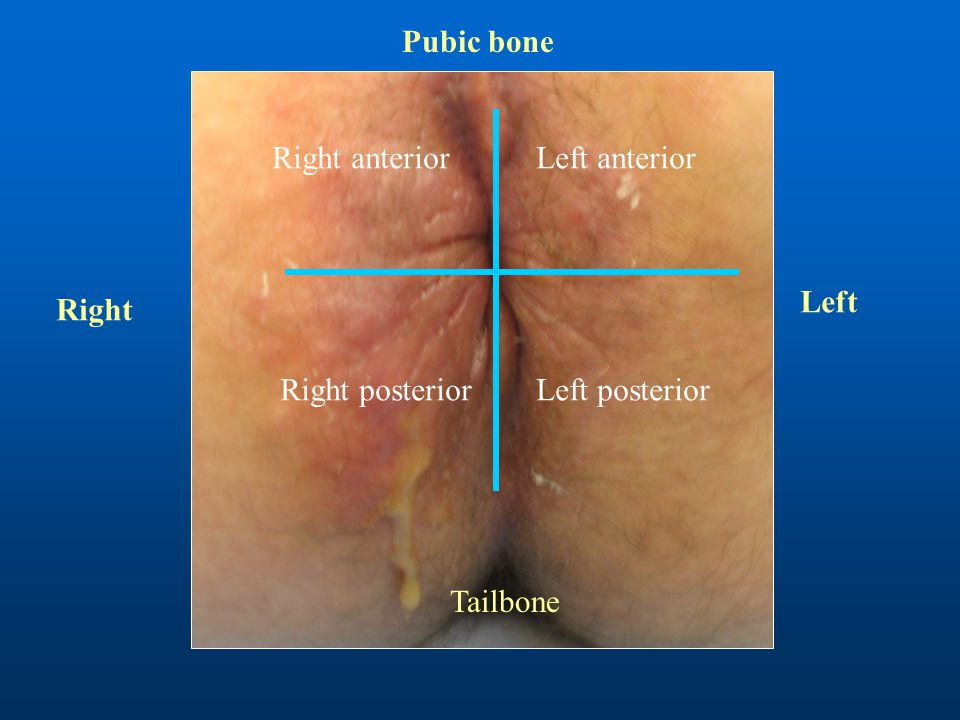 Tailbone Right anterior Right posterior Left anterior Left posterior Right Left Pubic bone