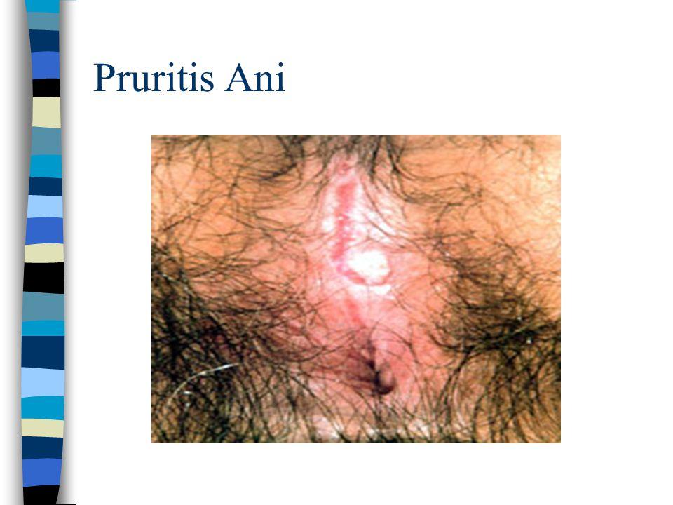 Pruritis Ani