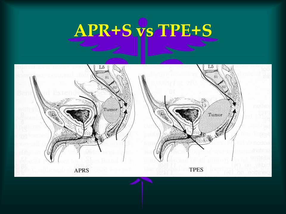 APR+S vs TPE+S