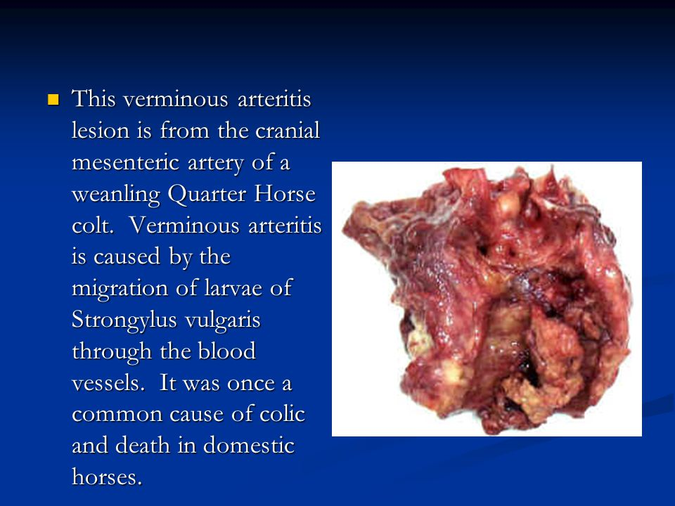 This verminous arteritis lesion is from the cranial mesenteric artery of a weanling Quarter Horse colt.