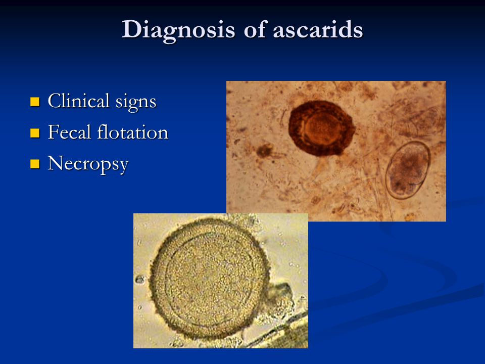 Diagnosis of ascarids Clinical signs Clinical signs Fecal flotation Fecal flotation Necropsy Necropsy