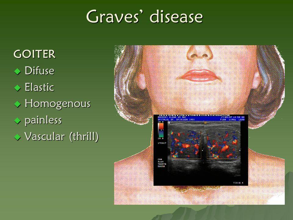 GOITER  Difuse  Elastic  Homogenous  painless  Vascular (thrill)