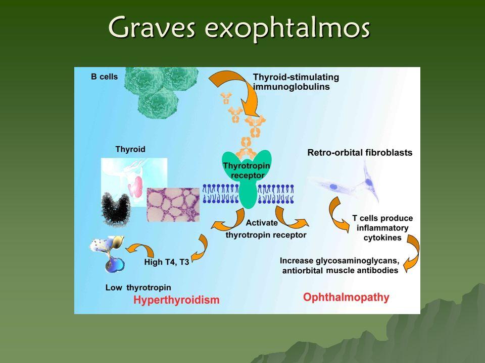 Graves exophtalmos