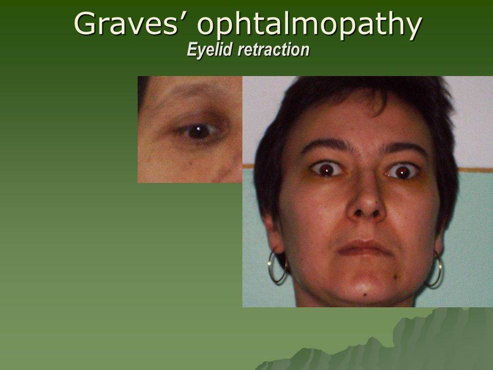 Graves' ophtalmopathy Eyelid retraction