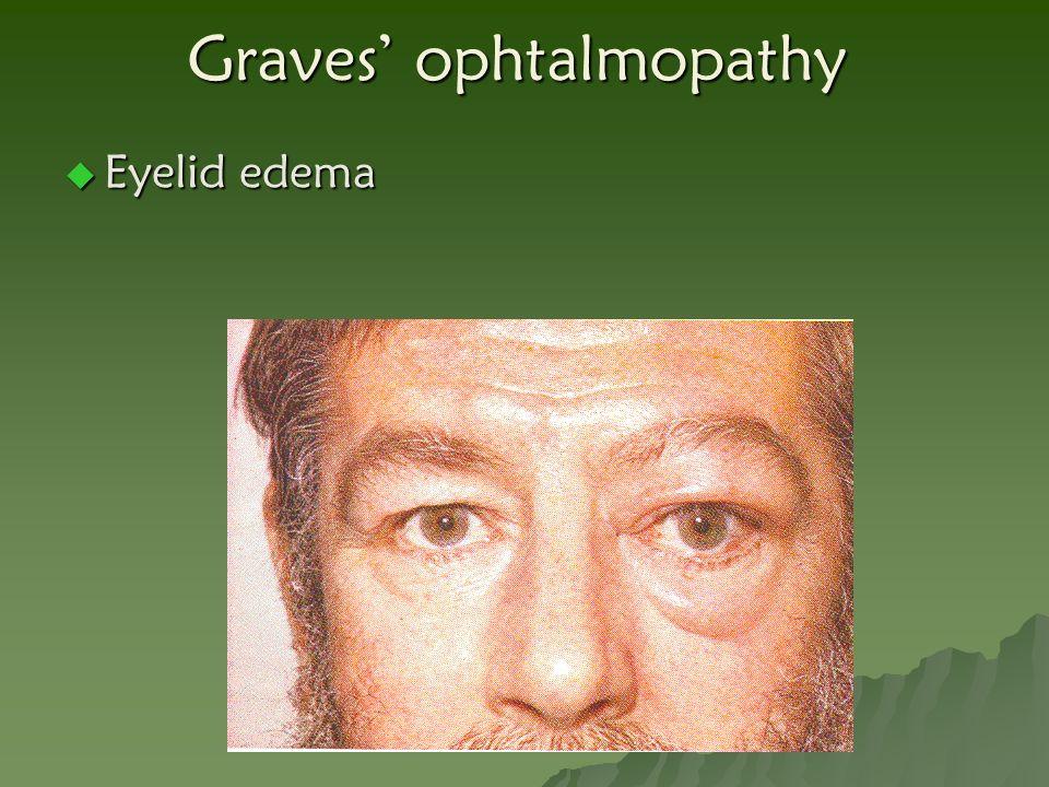 Graves' ophtalmopathy  Eyelid edema