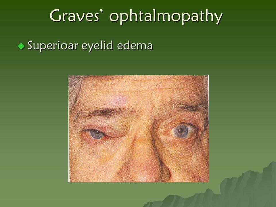 Graves' ophtalmopathy  Superioar eyelid edema