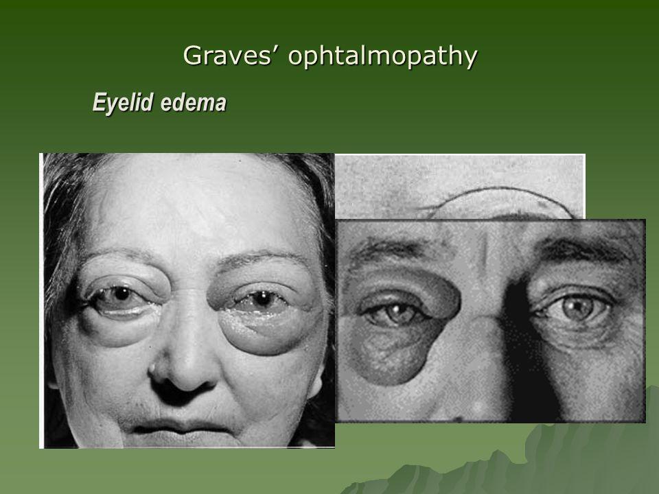 Eyelid edema Graves' ophtalmopathy