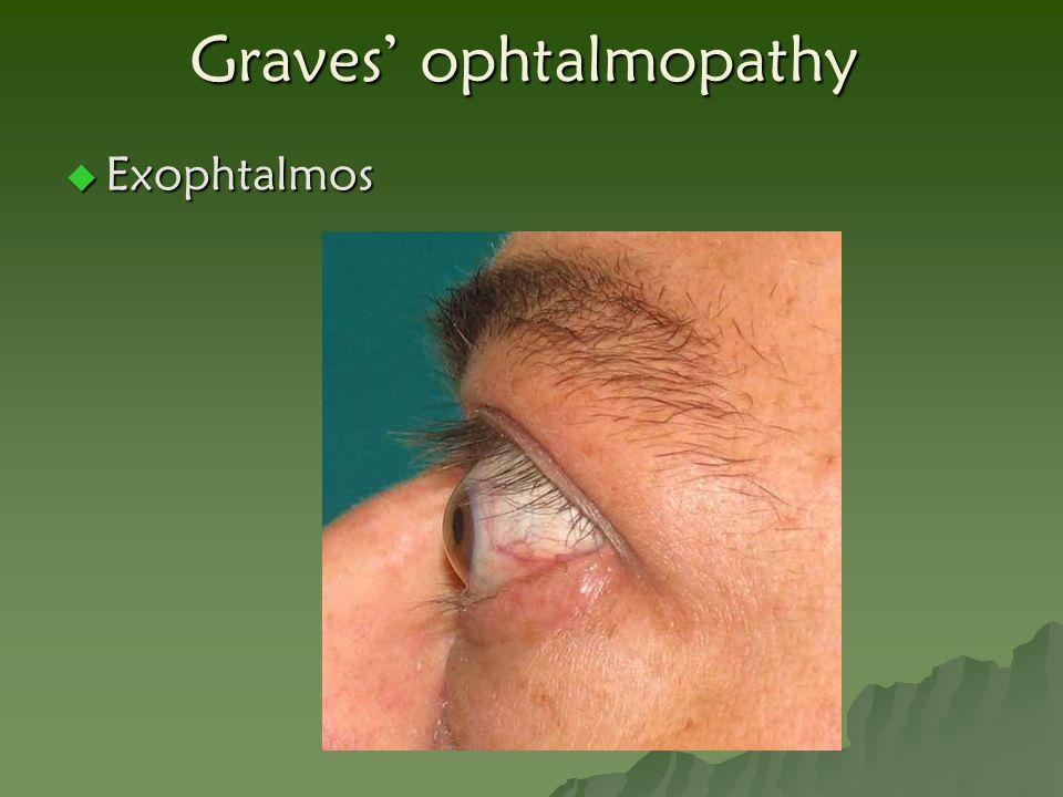 Graves' ophtalmopathy  Exophtalmos