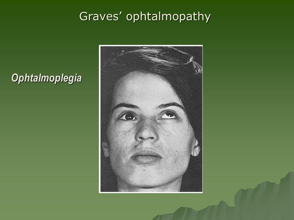 Ophtalmoplegia Graves' ophtalmopathy