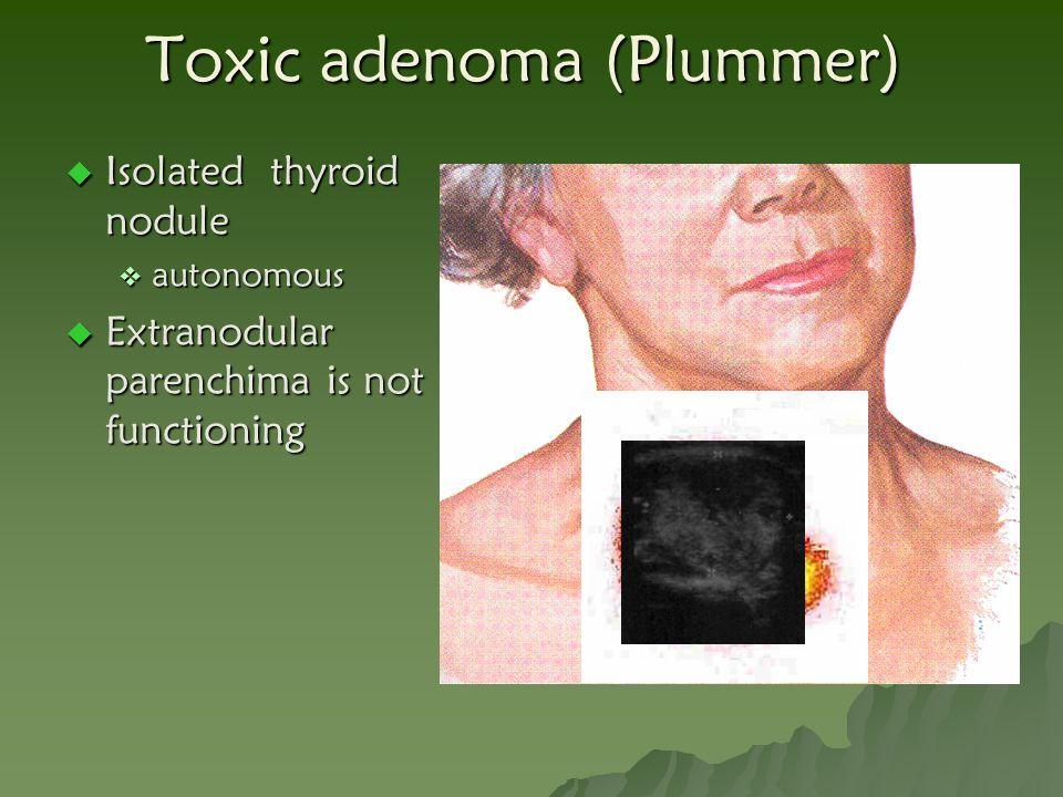 Toxic adenoma (Plummer)  Isolated thyroid nodule  autonomous  Extranodular parenchima is not functioning