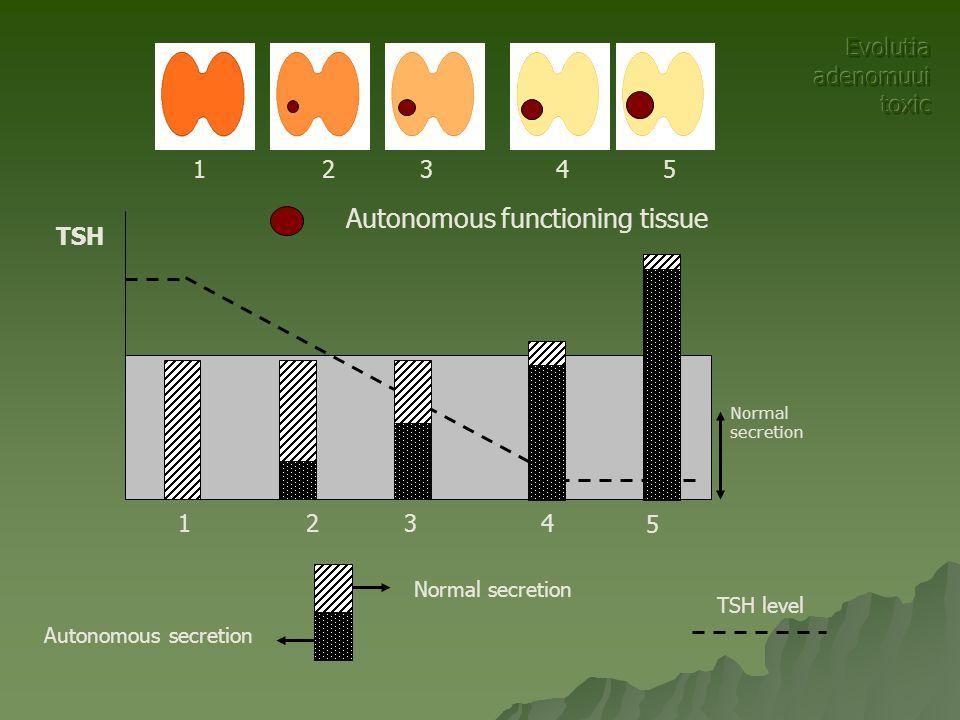 TSH level Autonomous secretion Normal secretion TSH Normal secretion Autonomous functioning tissue 32541 32 5 4 1