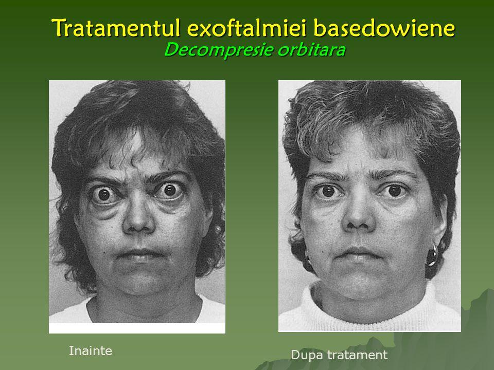 Tratamentul exoftalmiei basedowiene Decompresie orbitara Inainte Dupa tratament