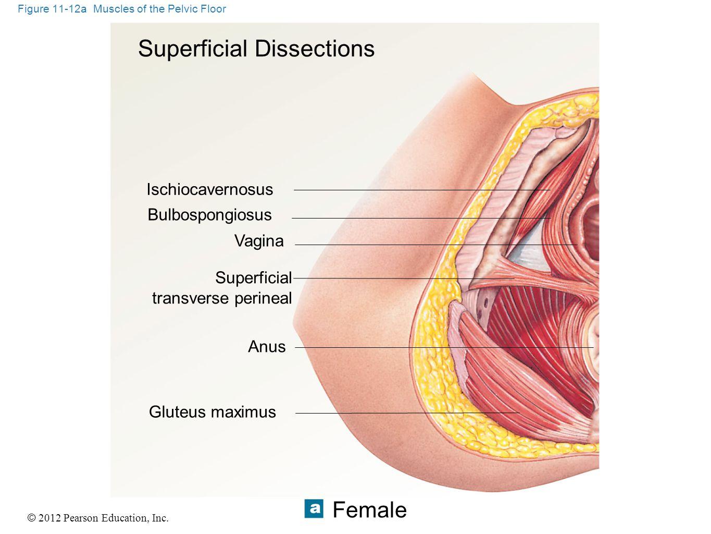 © 2012 Pearson Education, Inc. Figure 11-12a Muscles of the Pelvic Floor Superficial Dissections Ischiocavernosus Bulbospongiosus Vagina Superficial t
