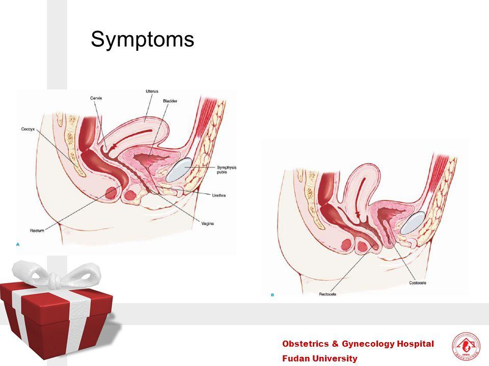 Obstetrics & Gynecology Hospital Fudan University Symptoms
