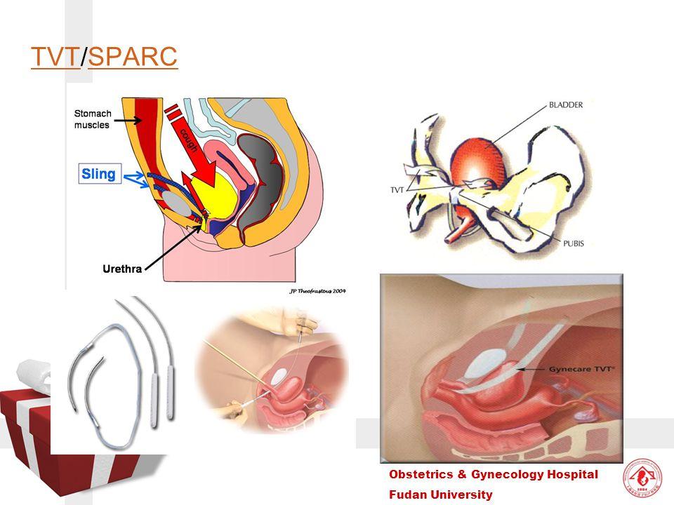 Obstetrics & Gynecology Hospital Fudan University TVTTVT/SPARCSPARC