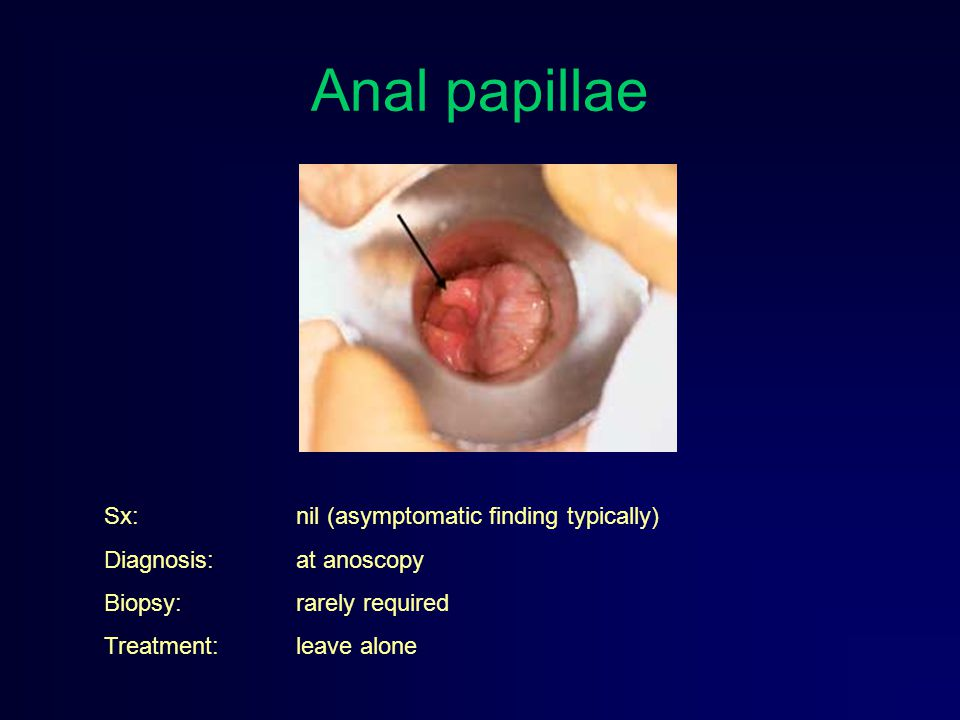 Anal papillae Sx: nil (asymptomatic finding typically) Diagnosis: at anoscopy Biopsy: rarely required Treatment: leave alone