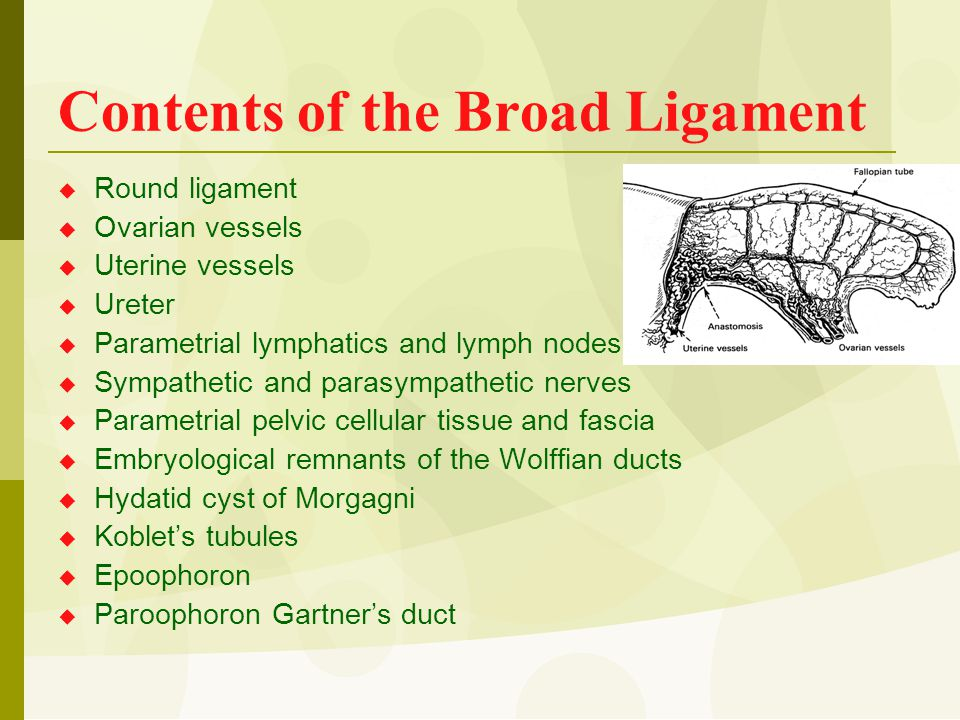 Contents of the Broad Ligament  Round ligament  Ovarian vessels  Uterine vessels  Ureter  Parametrial lymphatics and lymph nodes  Sympathetic an