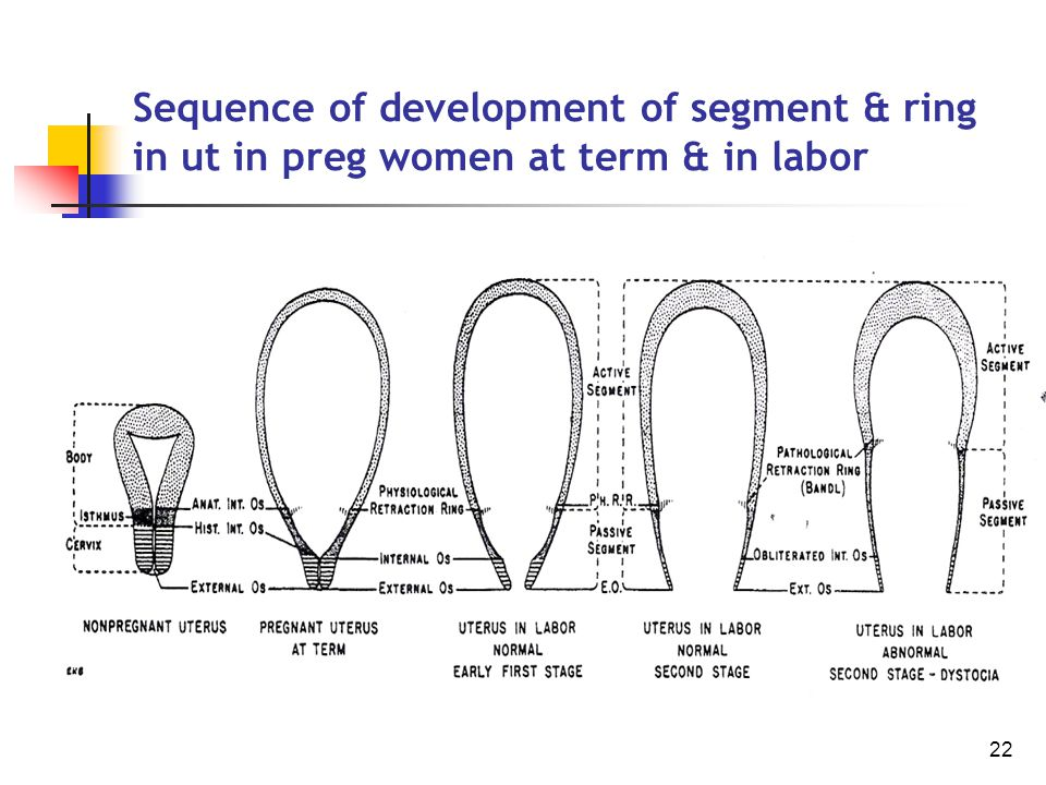 22 Sequence of development of segment & ring in ut in preg women at term & in labor