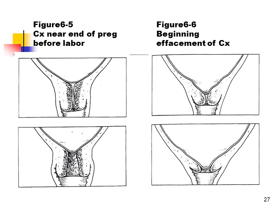 27 Figure6-5 Cx near end of preg before labor Figure6-6 Beginning effacement of Cx