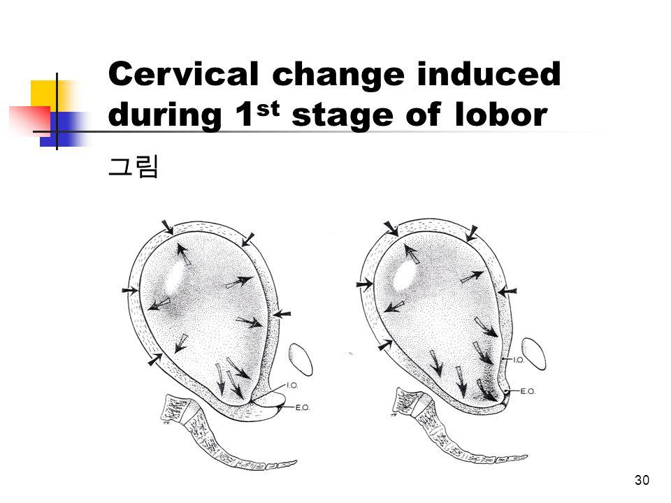 30 그림 Cervical change induced during 1 st stage of lobor