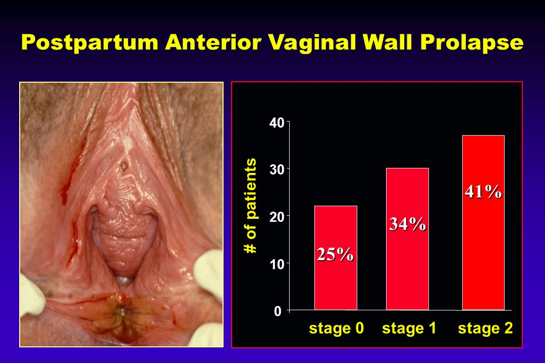 Postpartum Anterior Vaginal Wall Prolapse 0 10 20 30 40 stage 0 stage 1 stage 2 # of patients 25% 34% 41%