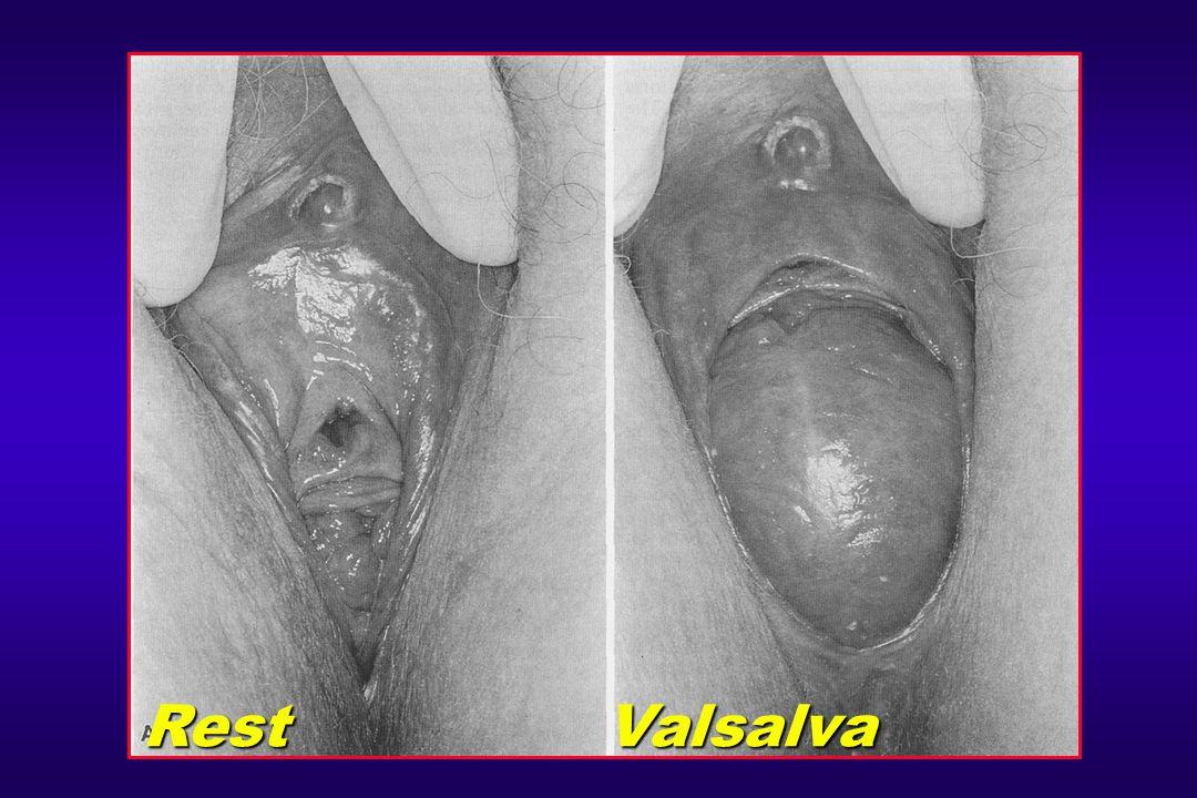 Vaginal Delivery Associated with Urethral Hypermobility Fascial white line Pubocervical hammock Pubovesical muscle Muscle white line Rectovaginal septum