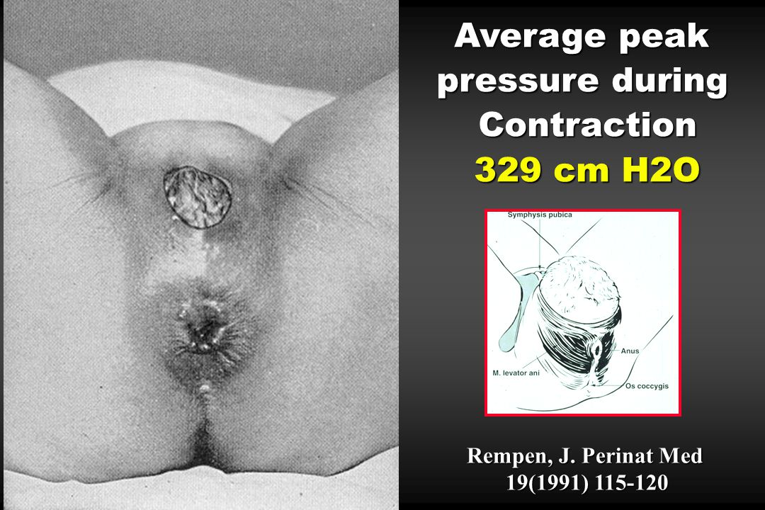 Average peak pressure during Contraction 329 cm H2O Rempen, J. Perinat Med 19(1991) 115-120