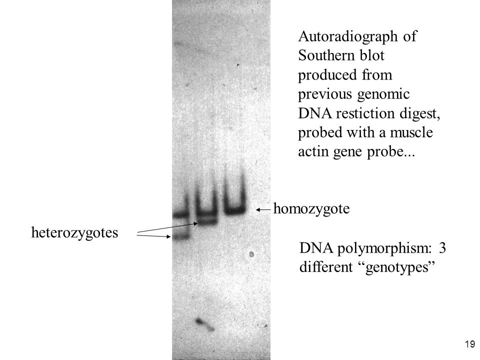 19 homozygote heterozygotes Autoradiograph of Southern blot produced from previous genomic DNA restiction digest, probed with a muscle actin gene prob