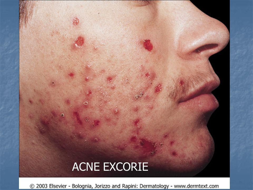 ACNE EXCORIE