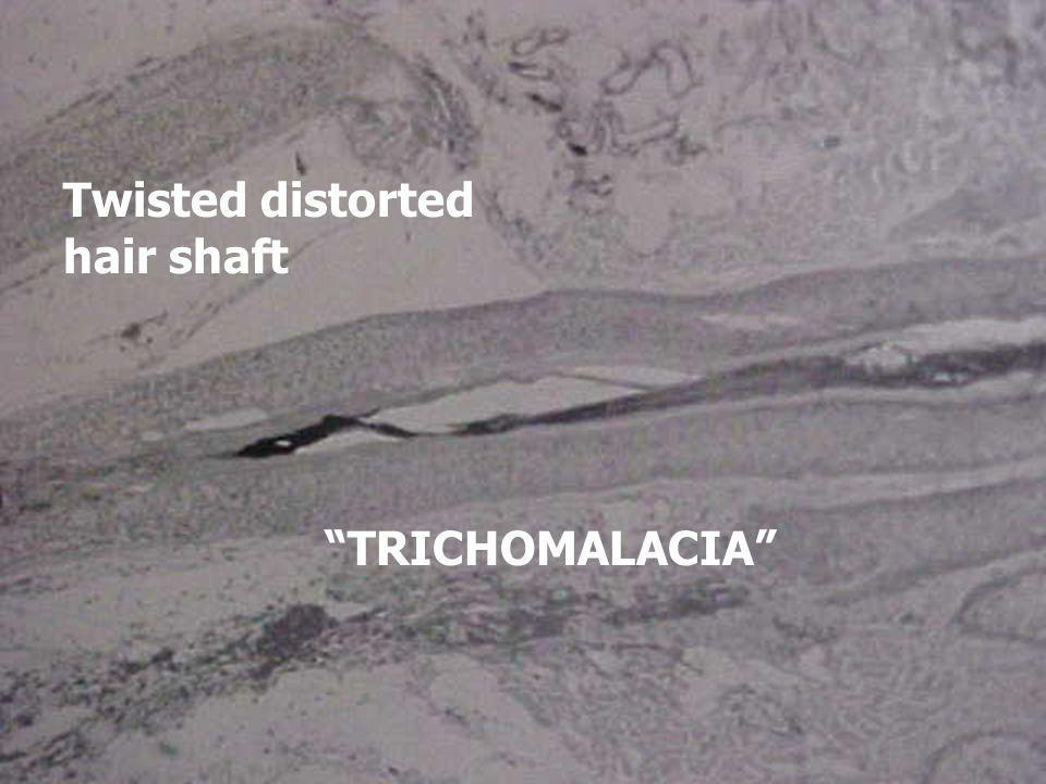 Twisted distorted hair shaft TRICHOMALACIA
