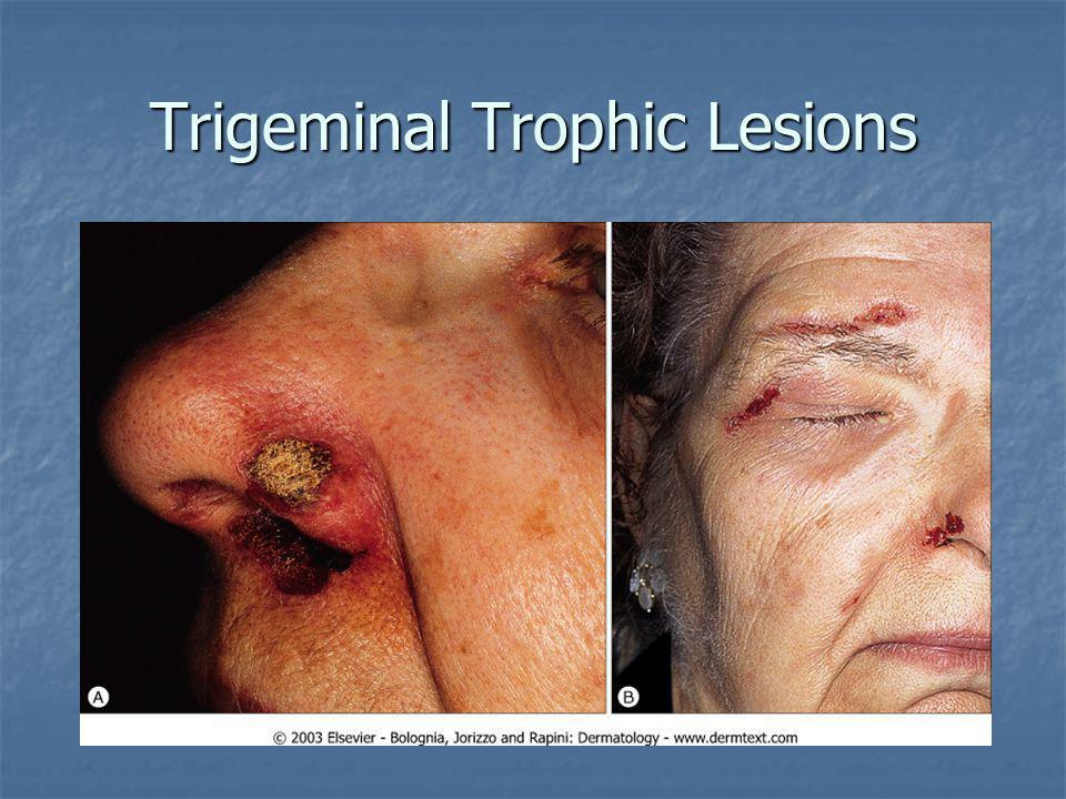 Trigeminal Trophic Lesions
