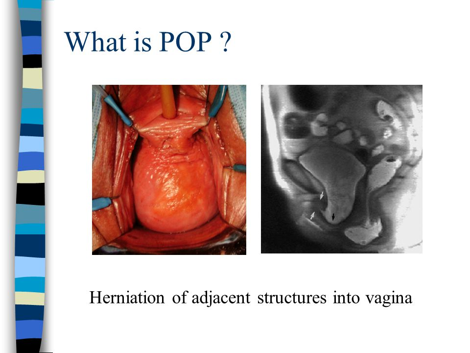What is POP ? Herniation of adjacent structures into vagina