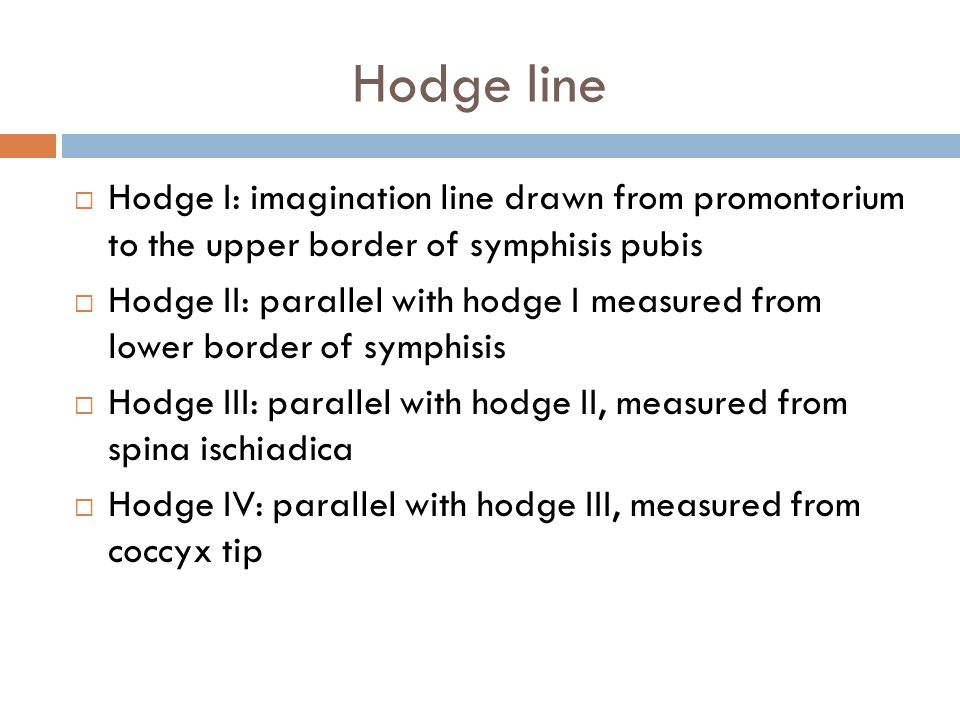 Hodge line  Hodge I: imagination line drawn from promontorium to the upper border of symphisis pubis  Hodge II: parallel with hodge I measured from lower border of symphisis  Hodge III: parallel with hodge II, measured from spina ischiadica  Hodge IV: parallel with hodge III, measured from coccyx tip